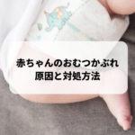 赤ちゃんのおむつかぶれ 原因と対処方法